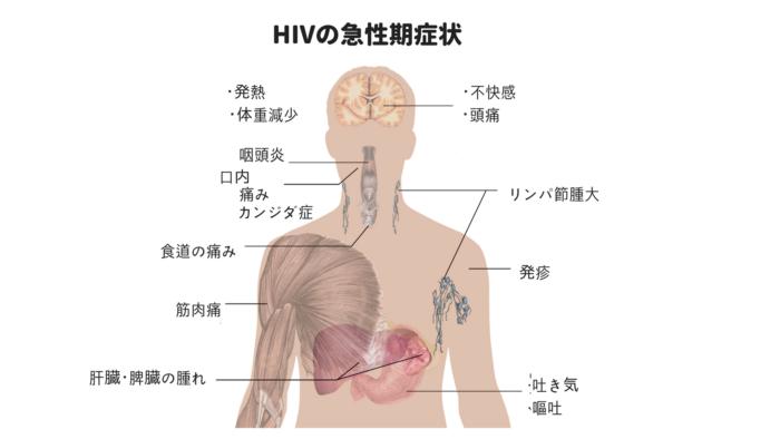 HIVの急性期症状