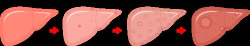 C型肝炎の潜在感染による病期の進行