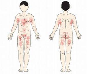 疥癬の病変分布