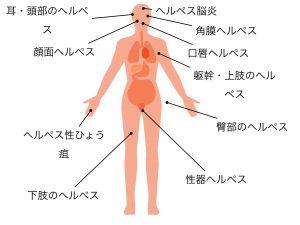 単純ヘルペスの感染部位による病型