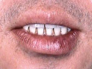 口唇にできた初期硬結