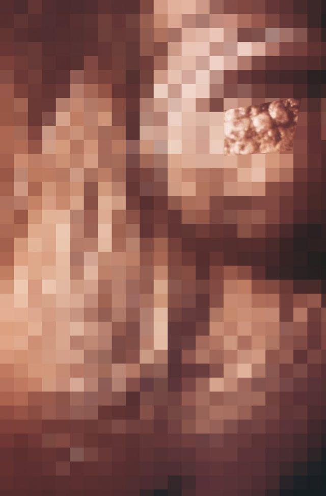ペニスにできた帯状疱疹